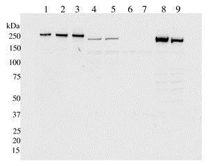 Western blot - Anti-LRRK2 antibody [UDD3 30(12)] (ab133518)