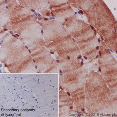 Immunohistochemistry (Formalin/PFA-fixed paraffin-embedded sections) - Anti-S100 alpha antibody [EPR5250] (ab133519)