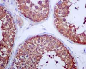 Immunohistochemistry (Formalin/PFA-fixed paraffin-embedded sections) - Anti-Glucose 6 Phosphate Dehydrogenase antibody [EPR6292] (ab133525)