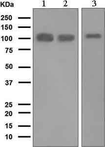 Western blot - Anti-Progesterone Receptor antibody [EPR5489] (ab133526)