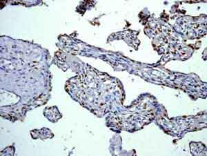 Immunohistochemistry (Formalin/PFA-fixed paraffin-embedded sections) - Anti-p57 Kip2 antibody [EP2718(2)] (ab133531)