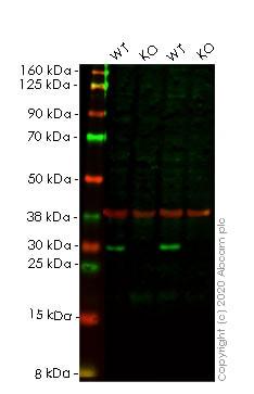 Western blot - Anti-HMGB2 antibody [EPR6302] (ab133540)
