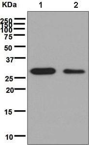 Western blot - Anti-CSN7b antibody [EPR6464] (ab133548)