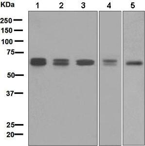 Western blot - Anti-CARD9 antibody [EPR6489] (ab133560)