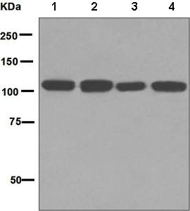 Western blot - Anti-Insulin degrading enzyme / IDE antibody [EPR6098(2)] (ab133561)