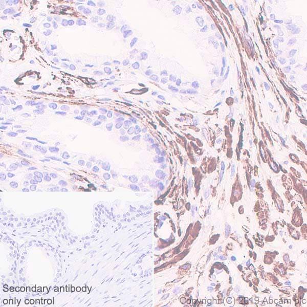 Immunohistochemistry (Formalin/PFA-fixed paraffin-embedded sections) - Anti-smooth muscle Myosin heavy chain 11 antibody [EPR5336(B)] (ab133567)