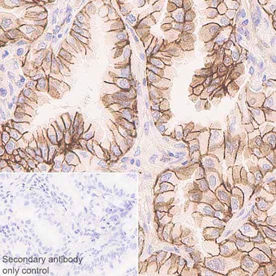 Immunohistochemistry (Formalin/PFA-fixed paraffin-embedded sections) - Anti-NDRG1 antibody [EPR5592] (ab133572)