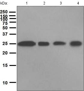 Western blot - Anti-Casein Kinase 2 beta antibody [EPR1994] (ab133576)
