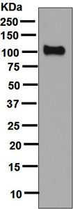 Western blot - Anti-PSMA antibody [EPR6253] (ab133579)