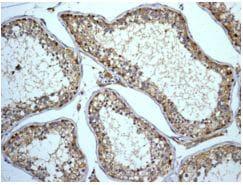 Immunohistochemistry (Formalin/PFA-fixed paraffin-embedded sections) - Anti-ABI2 antibody [EPR7069] (ab133593)