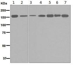 Western blot - Anti-HDLBP antibody [EPR5268] (ab133594)