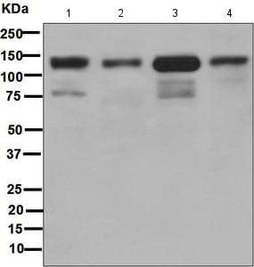 Western blot - Anti-E Cadherin antibody [EPR699] (ab133597)