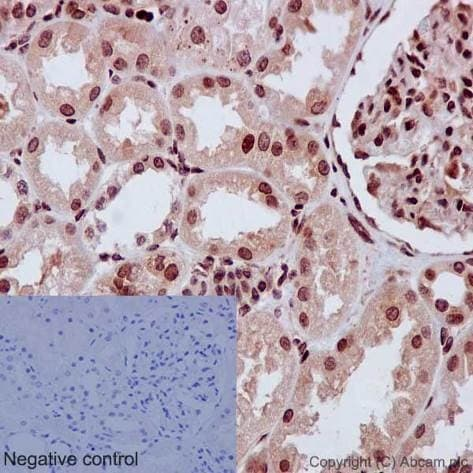 Immunohistochemistry (Formalin/PFA-fixed paraffin-embedded sections) - Anti-CBFb antibody [EPR6322] (ab133600)