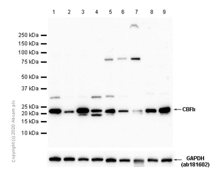 Western blot - Anti-CBFb antibody [EPR6322] (ab133600)