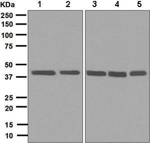 Western blot - Anti-hnRNP C1 + C2/HNRNPC antibody [EPNCIR152] (ab133607)