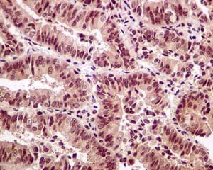 Immunohistochemistry (Formalin/PFA-fixed paraffin-embedded sections) - Anti-SRC3 antibody [EPR4374(3)] (ab133611)