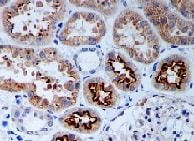 Immunohistochemistry (Formalin/PFA-fixed paraffin-embedded sections) - Anti-PR3 antibody [EPR6277] (ab133613)