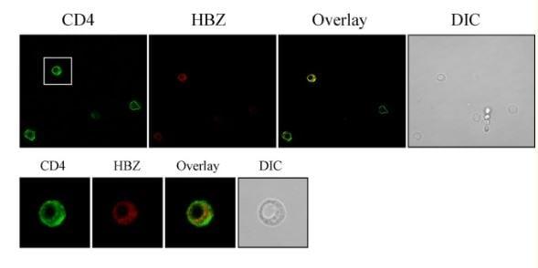 Immunocytochemistry - Anti-CD4 antibody [EPR6855] (ab133616)