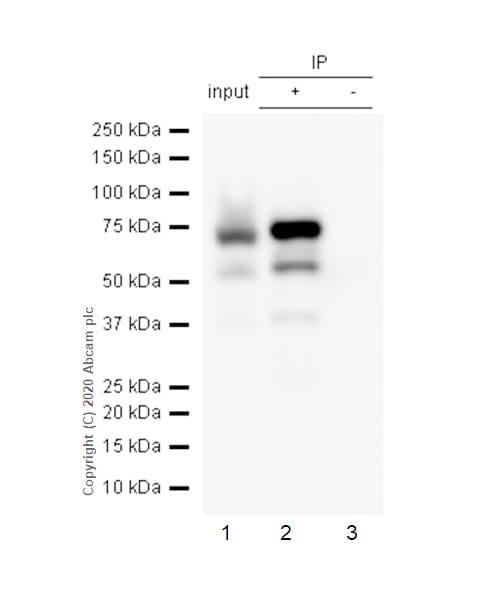 Immunoprecipitation - Anti-alpha 1 Fetoprotein antibody [EPAFP61] (ab133617)