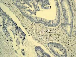 Immunohistochemistry (Formalin/PFA-fixed paraffin-embedded sections) - Anti-alpha 1 Fetoprotein antibody [EPAFP61] (ab133617)