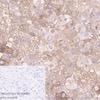 Immunohistochemistry (Formalin/PFA-fixed paraffin-embedded sections) - Anti-alpha 1 Fetoprotein antibody [EPAFP61] (ab133617)
