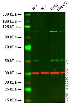 Western blot - Anti-PHD2 / prolyl hydroxylase antibody [EPR3660(B)(2)] (ab133630)
