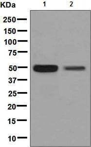 Western blot - Anti-CHX10 antibody [EPR7022] (ab133636)