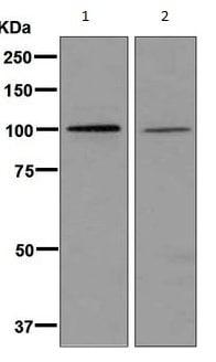 Western blot - Anti-HACE1 antibody [EPR7962] (ab133637)