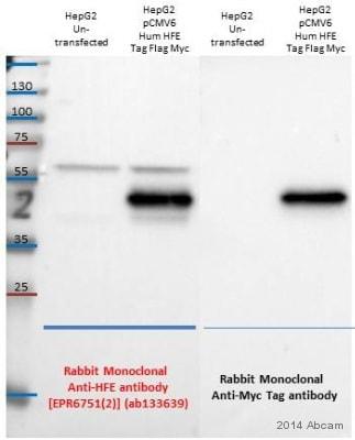 Western blot - Anti-HFE antibody [EPR6751(2)] (ab133639)