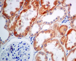 Immunohistochemistry (Formalin/PFA-fixed paraffin-embedded sections) - Anti-Cathepsin L/V/K/H antibody [EPR8011] (ab133641)