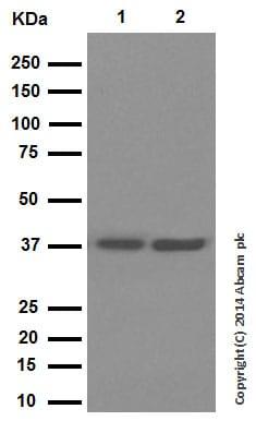 Western blot - Anti-Cathepsin L/V/K/H antibody [EPR8011] (ab133641)