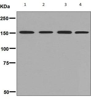 Western blot - Anti-SMC1A antibody [EPFHCR37F] (ab133643)