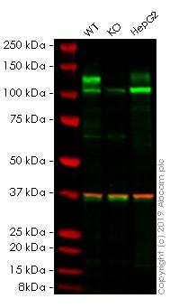 Western blot - Anti-FGFR3 antibody [EPR2304(3)] (ab133644)