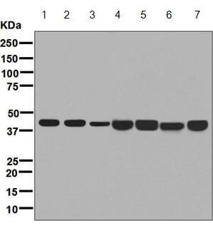 Western blot - Anti-67kDa Laminin Receptor antibody [EPR8469] (ab133645)