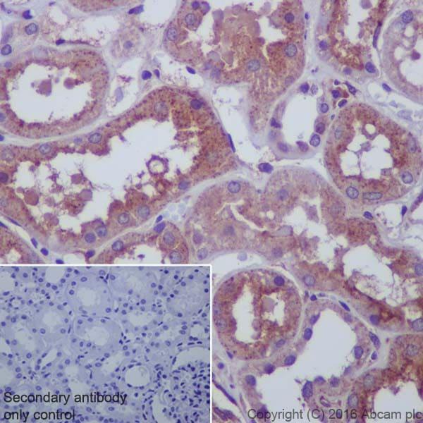 Immunohistochemistry (Formalin/PFA-fixed paraffin-embedded sections) - Anti-67kDa Laminin Receptor antibody [EPR8469] (ab133645)