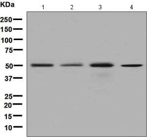 Western blot - Anti-Dysbindin antibody [EPR7041] (ab133652)