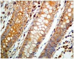 Immunohistochemistry (Formalin/PFA-fixed paraffin-embedded sections) - Anti-CAP1 antibody [EPR8338] (ab133655)