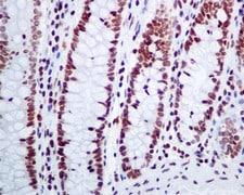 Immunohistochemistry (Formalin/PFA-fixed paraffin-embedded sections) - Anti-CLP1 antibody [EPR7180(2)] (ab133669)