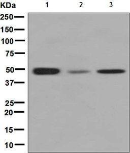 Western blot - Anti-CLP1 antibody [EPR7180(2)] (ab133669)