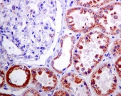 Immunohistochemistry (Formalin/PFA-fixed paraffin-embedded sections) - Anti-Methylmalonyl Coenzyme A mutase antibody [EPR7739] (ab133672)
