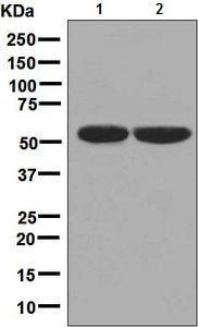 Western blot - Anti-Carboxypeptidase B2 antibody [EPR7858] (ab133679)
