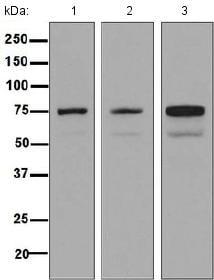 Western blot - Anti-Dymeclin antibody [EPR8789] (ab133685)