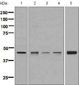 Western blot - Anti-Elp4 antibody [EPR4200(2)] (ab133687)