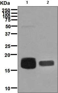 Western blot - Anti-CD59 antibody [EPR6425(2)] (ab133707)