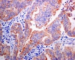 Immunohistochemistry (Formalin/PFA-fixed paraffin-embedded sections) - Anti-SAMM50/SAM50 antibody [EPR8718] (ab133709)