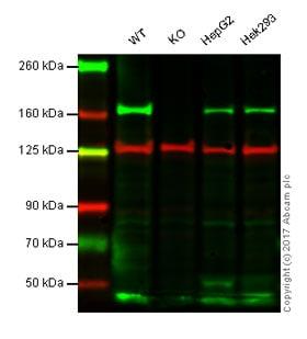 Western blot - Anti-AGL/Alpha-glucosidase antibody [EPR8880] (ab133720)