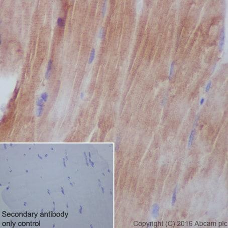 Immunohistochemistry (Formalin/PFA-fixed paraffin-embedded sections) - Anti-AGL/Alpha-glucosidase antibody [EPR8880] (ab133720)