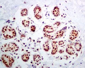 Immunohistochemistry (Formalin/PFA-fixed paraffin-embedded sections) - Anti-NOP10 antibody [EPR8856] (ab133726)