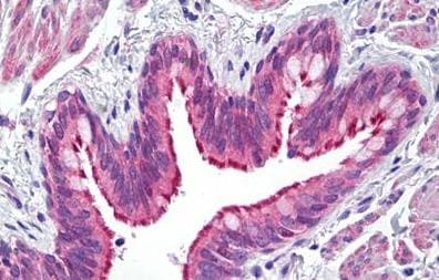 Immunohistochemistry (Formalin/PFA-fixed paraffin-embedded sections) - Anti-ATP7b antibody (ab133731)