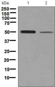 Western blot - Anti-Netrin G2 antibody [EPR4570(2)] (ab133732)